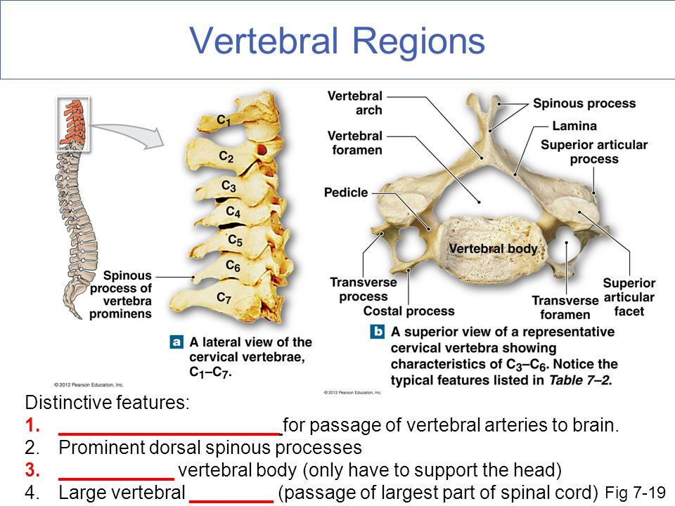 Vertebral Regions Distinctive features: