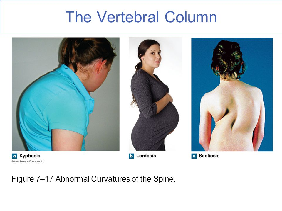 The Vertebral Column Figure 7–17 Abnormal Curvatures of the Spine.