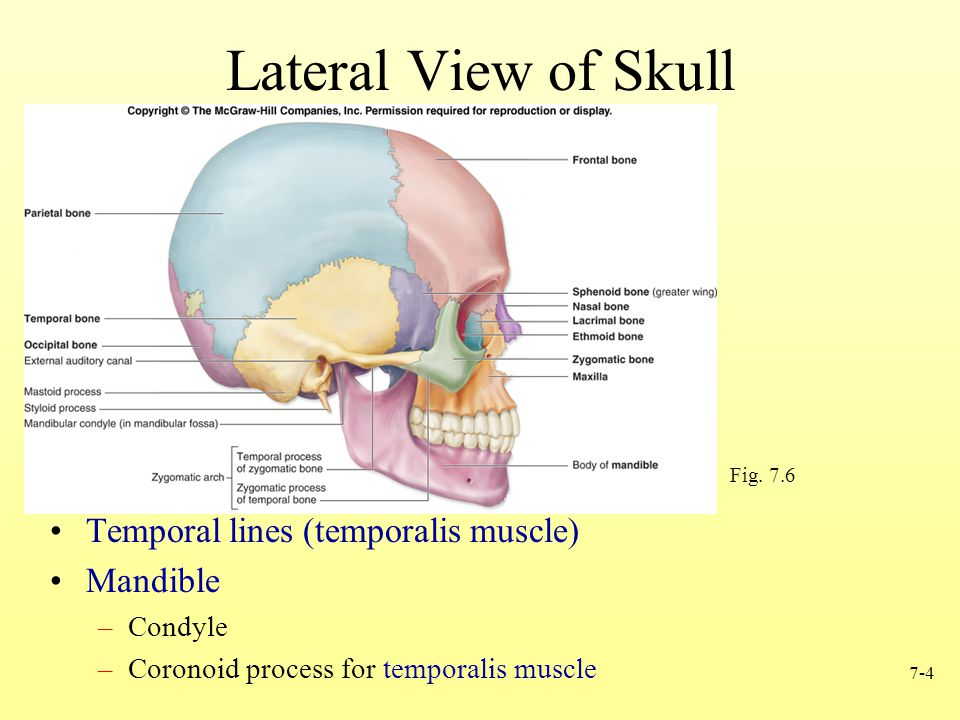 Lateral View of Skull Temporal lines (temporalis muscle) Mandible