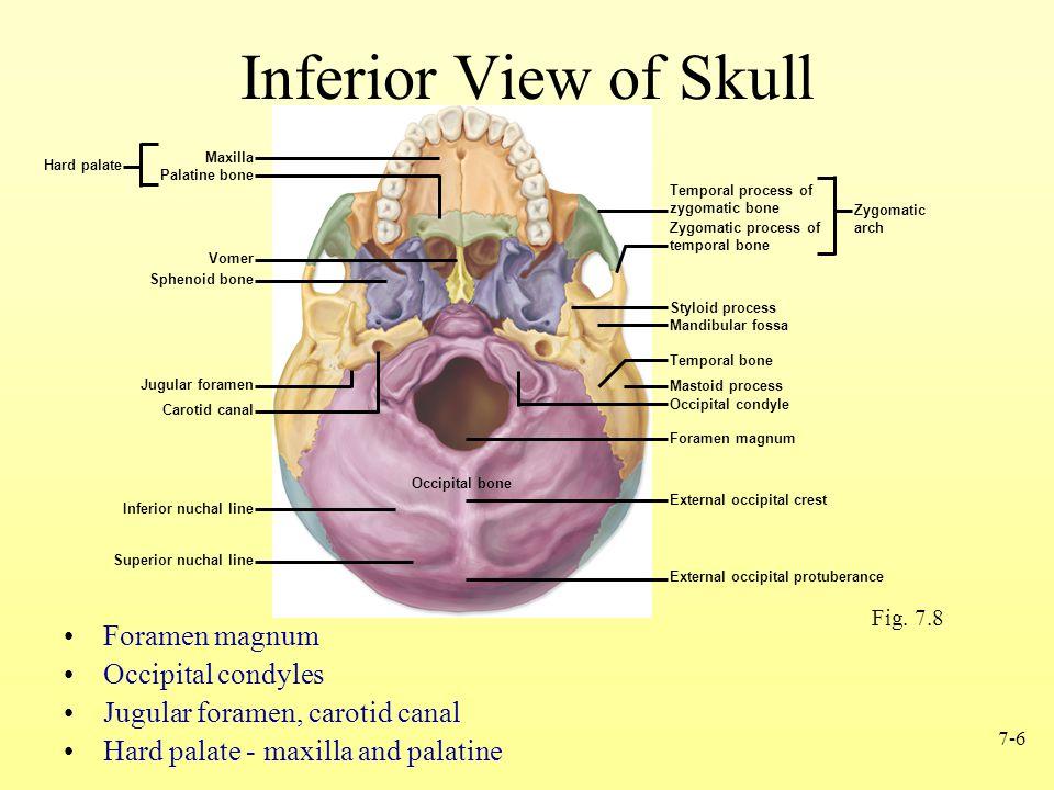 Inferior View of Skull Foramen magnum Occipital condyles