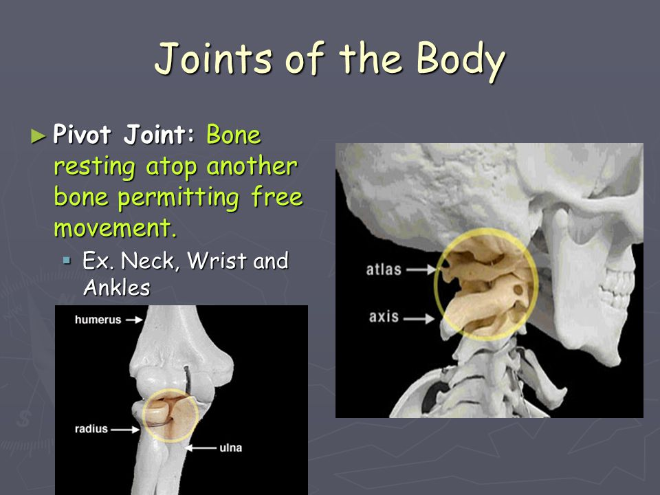 Joints of the Body Pivot Joint: Bone resting atop another bone permitting free movement.