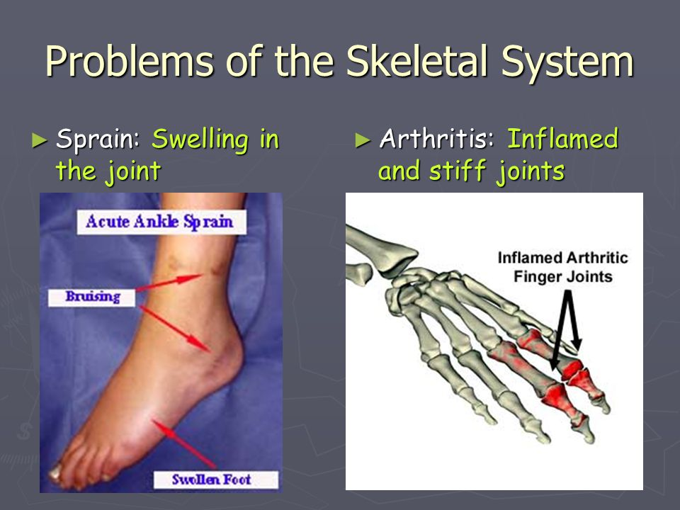 Problems of the Skeletal System