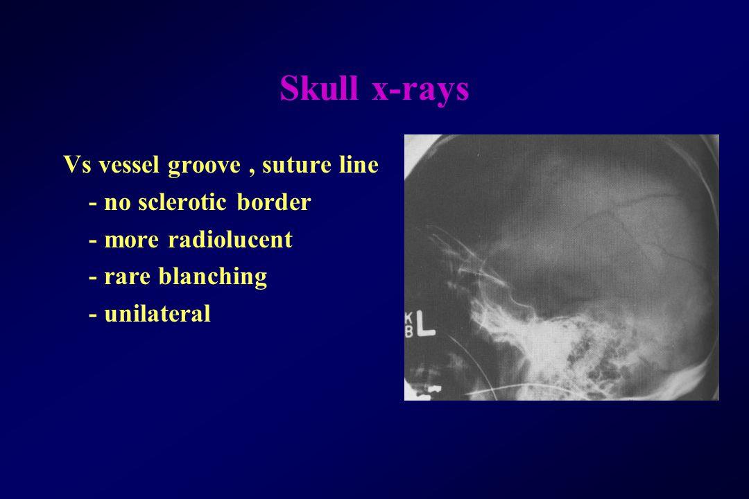Skull x-rays Vs vessel groove , suture line - no sclerotic border