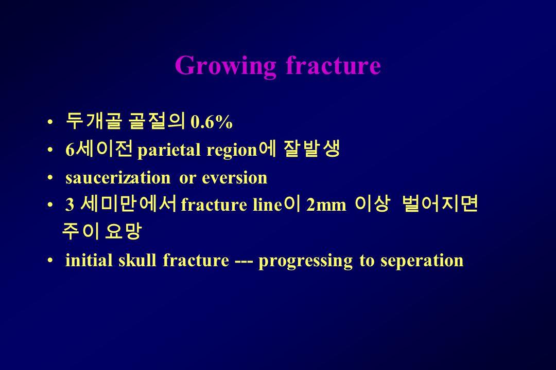 Growing fracture 두개골 골절의 0.6% 6세이전 parietal region에 잘발생
