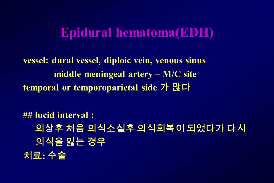 Epidural hematoma(EDH)