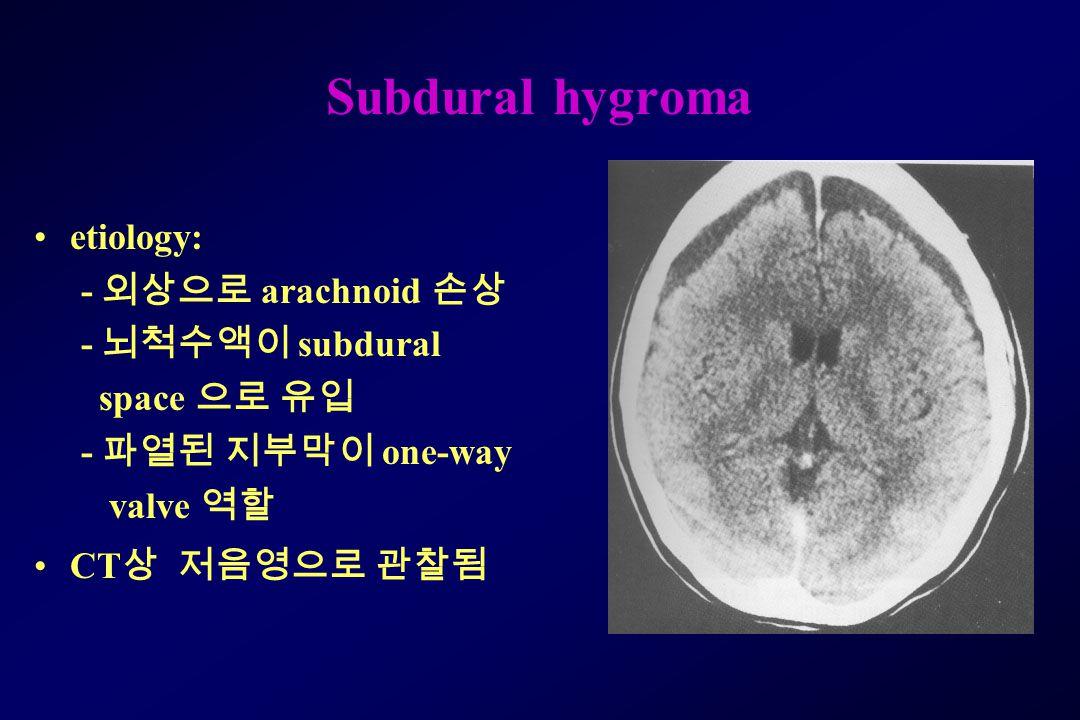 Subdural hygroma etiology: - 외상으로 arachnoid 손상 - 뇌척수액이 subdural