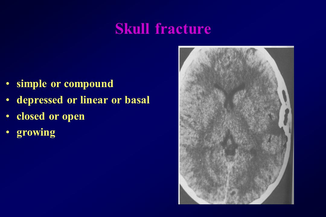 Skull fracture simple or compound depressed or linear or basal