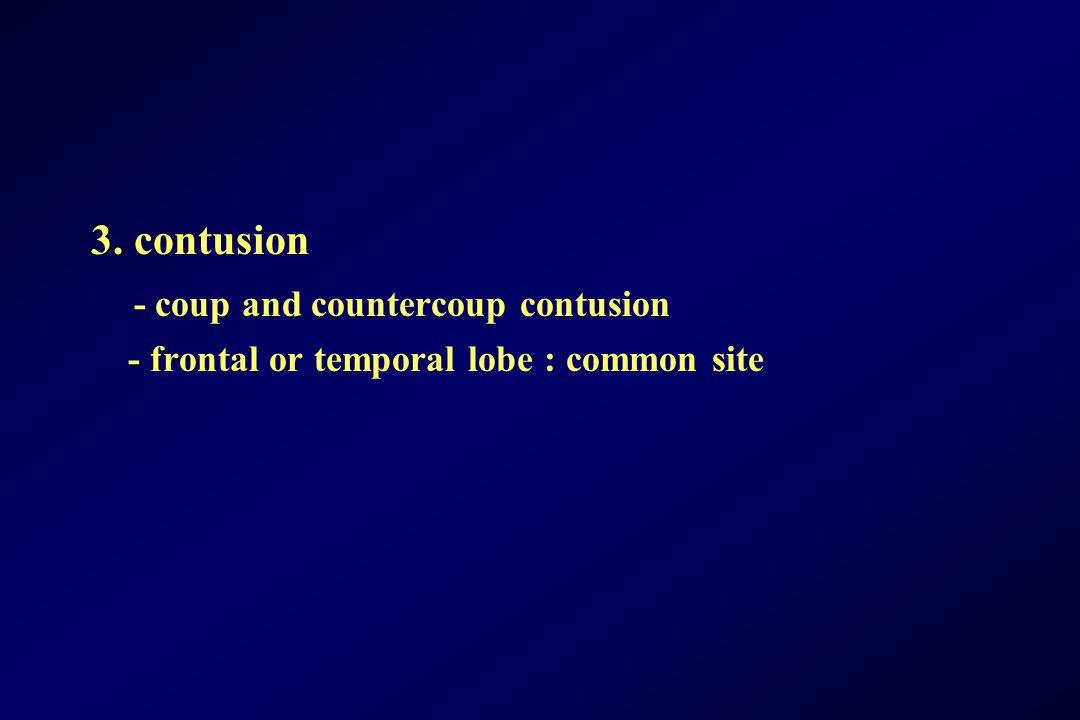 - coup and countercoup contusion