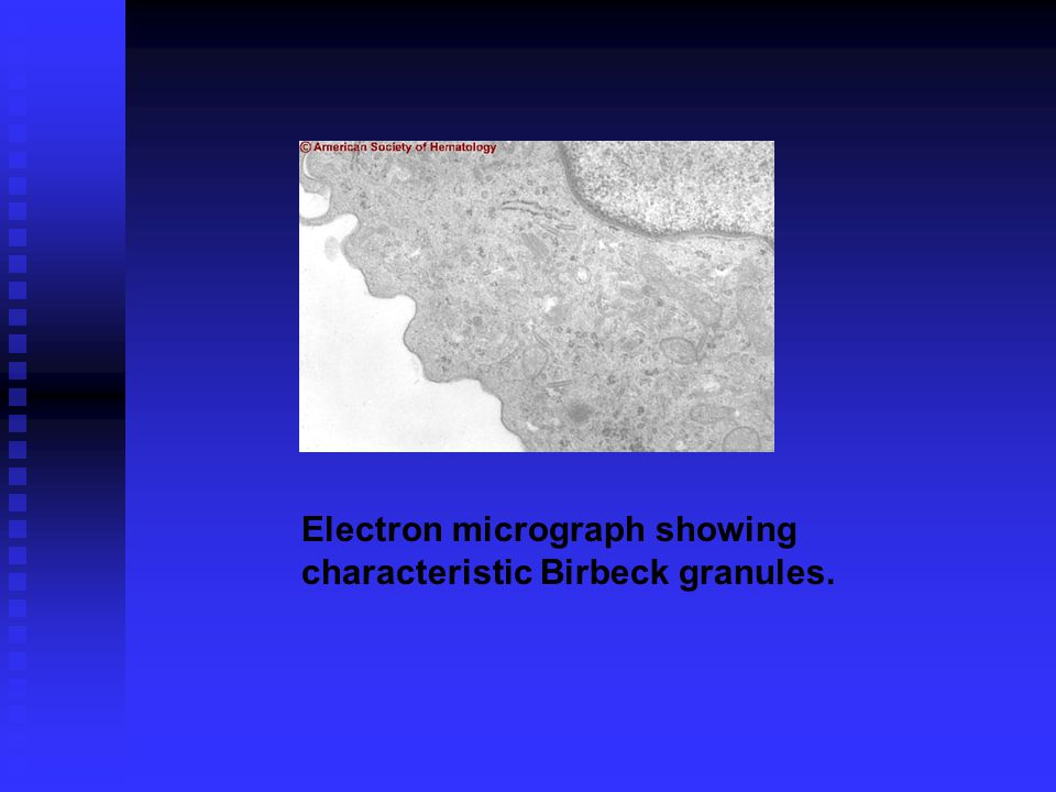 Electron micrograph showing