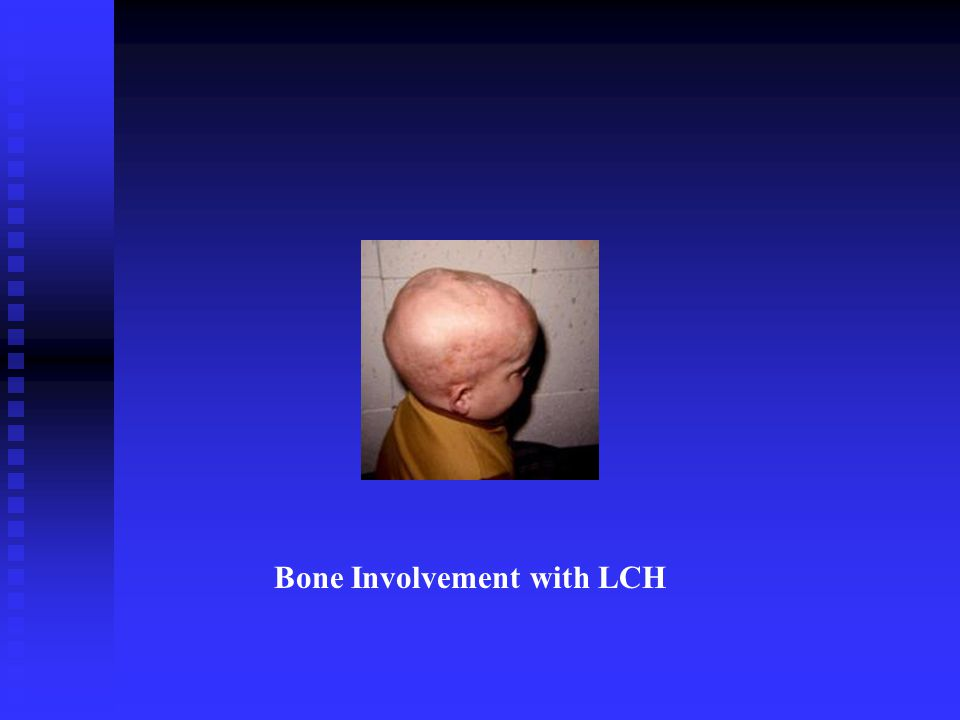 Bone Involvement with LCH