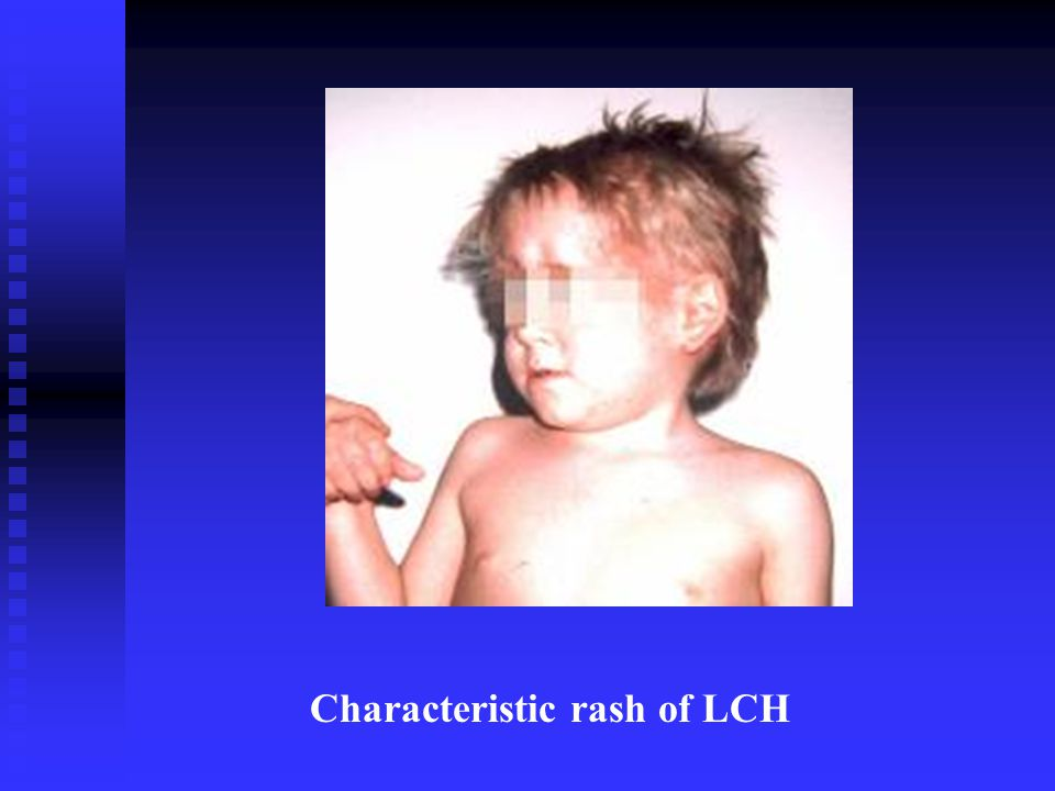 Characteristic rash of LCH