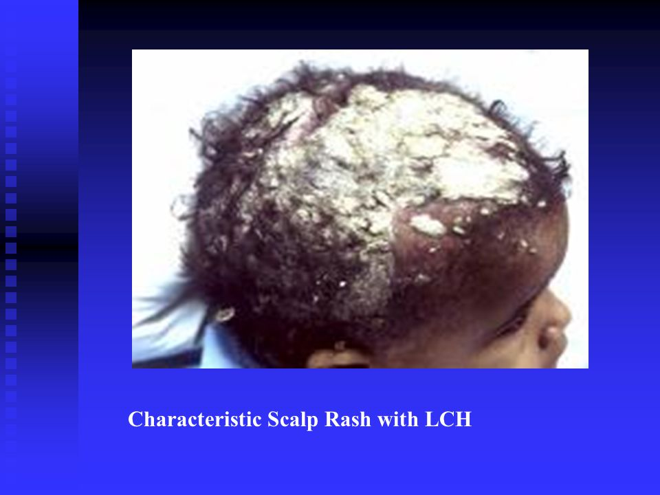 Characteristic Scalp Rash with LCH