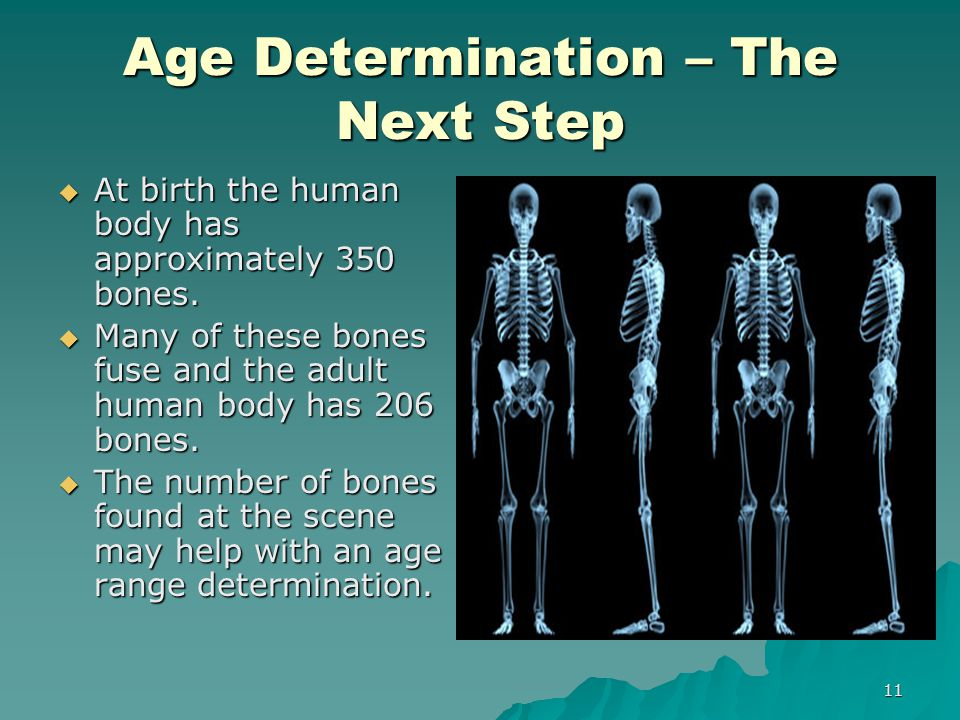 Age Determination – The Next Step