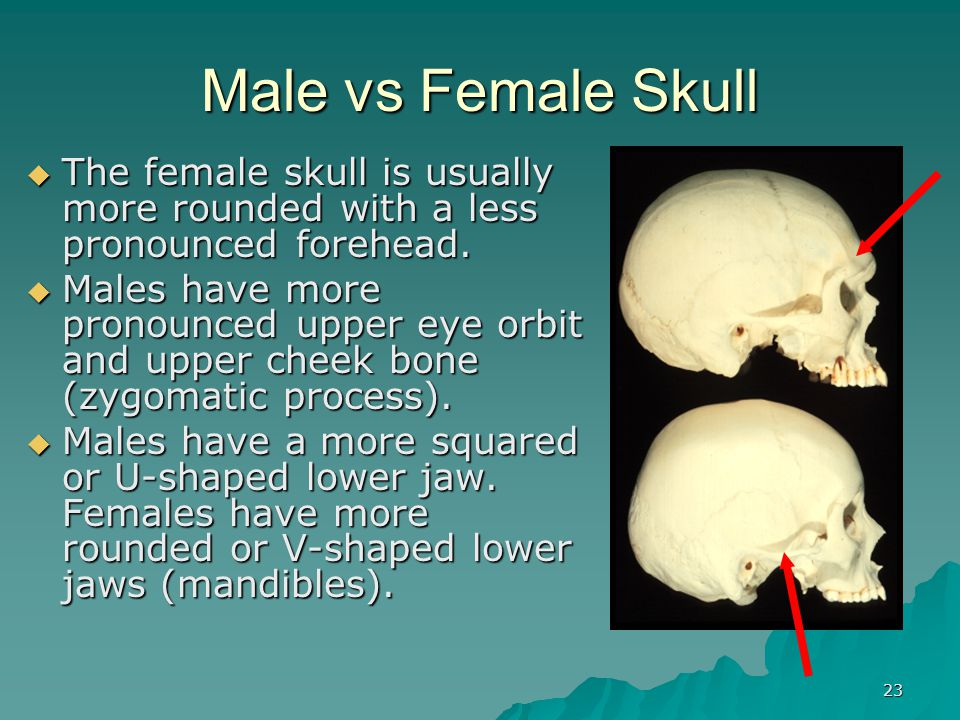 Male vs Female Skull The female skull is usually more rounded with a less pronounced forehead.