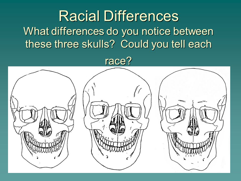 Racial Differences What differences do you notice between these three skulls.