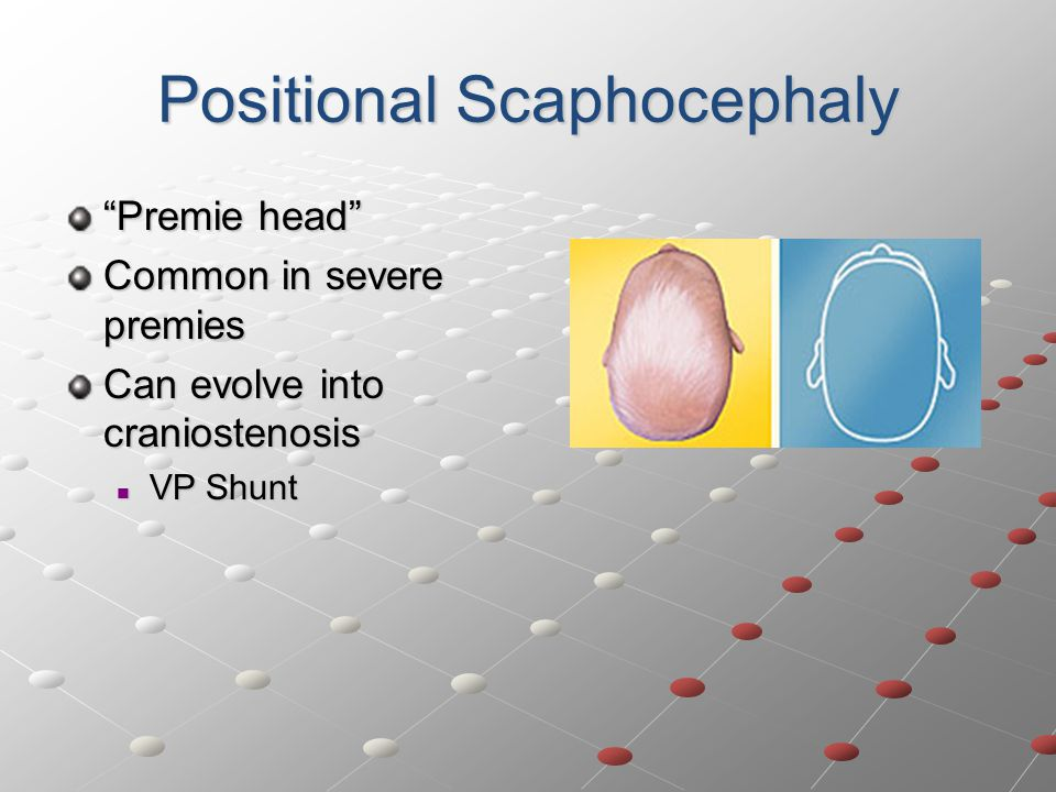 Positional Scaphocephaly