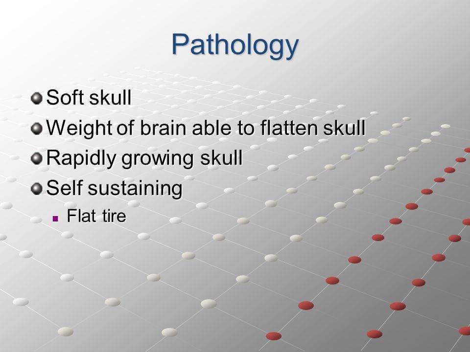 Pathology Soft skull Weight of brain able to flatten skull