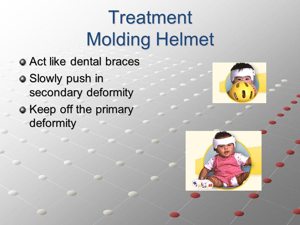 Treatment Molding Helmet