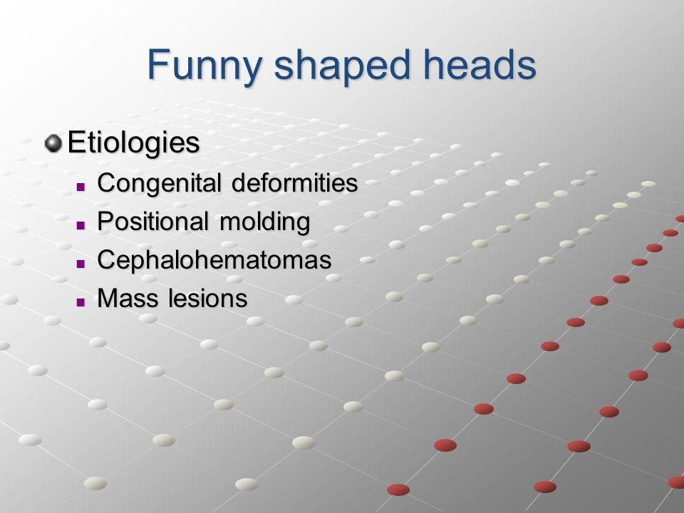 Funny shaped heads Etiologies Congenital deformities