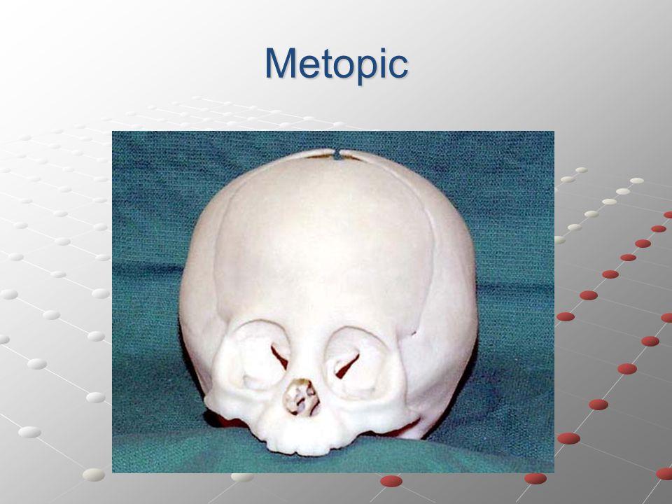 Metopic