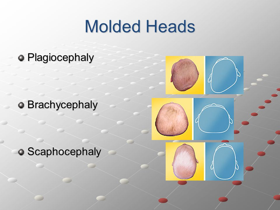 Molded Heads Plagiocephaly Brachycephaly Scaphocephaly
