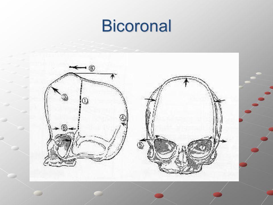 Bicoronal