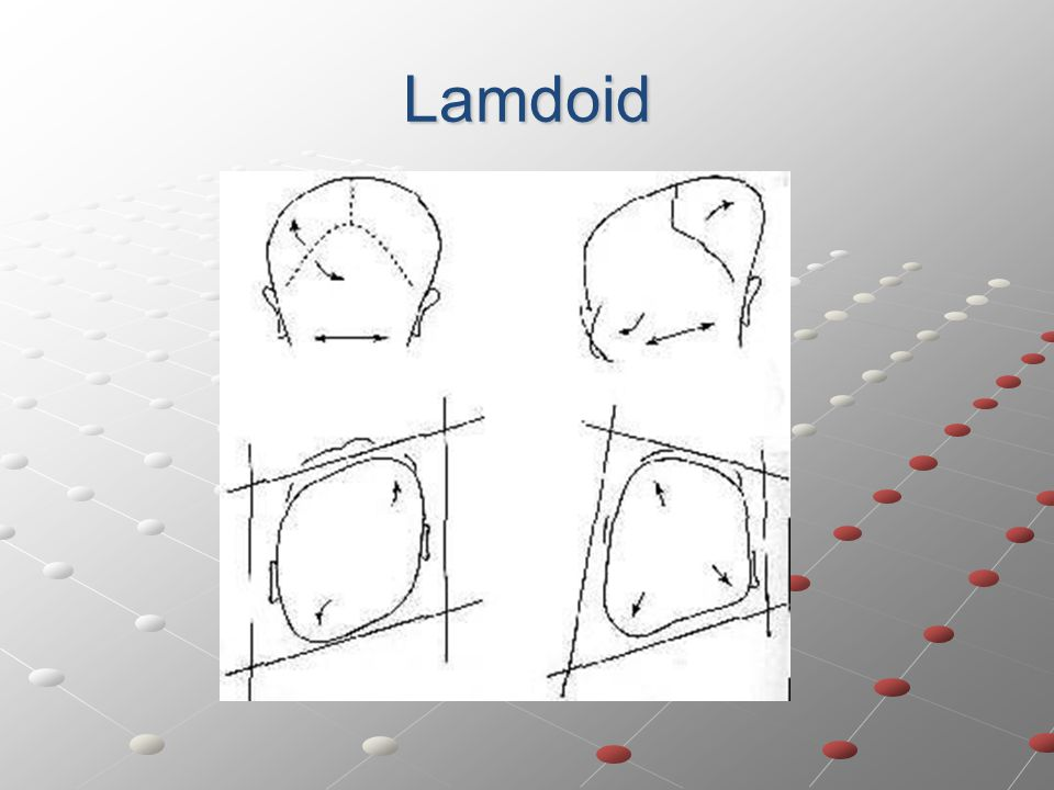 Lamdoid