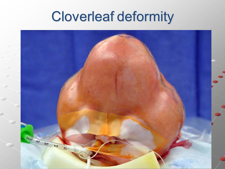 Cloverleaf deformity