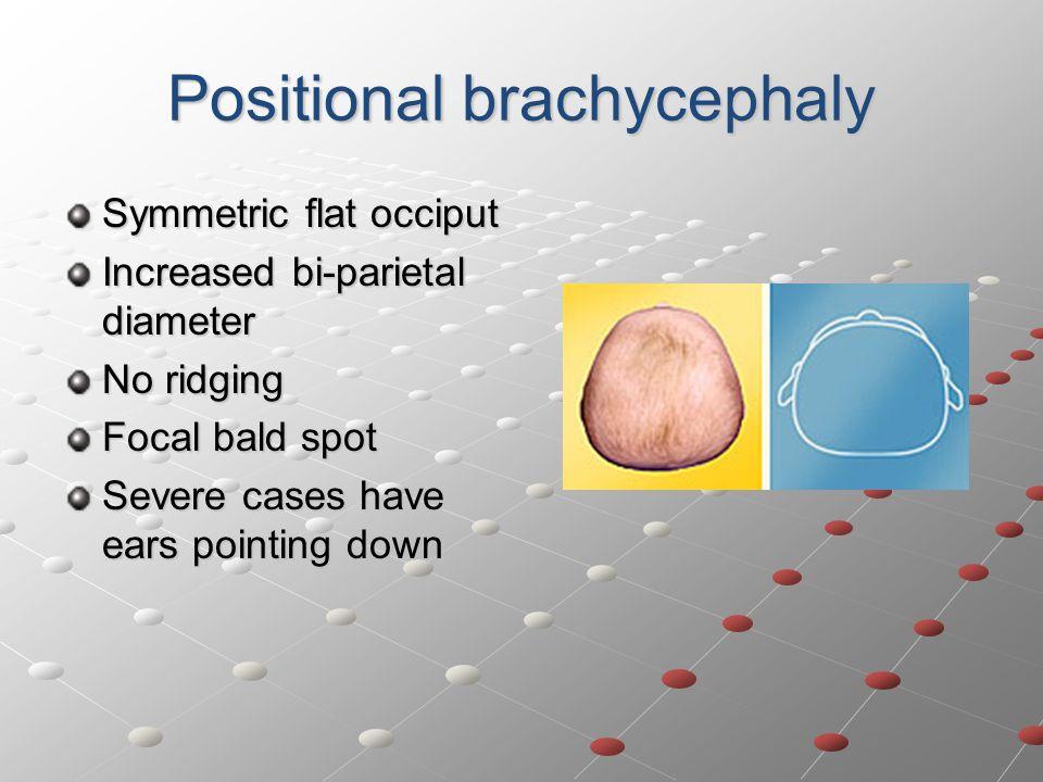 Positional brachycephaly