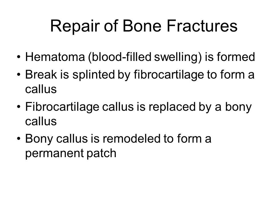 Repair of Bone Fractures