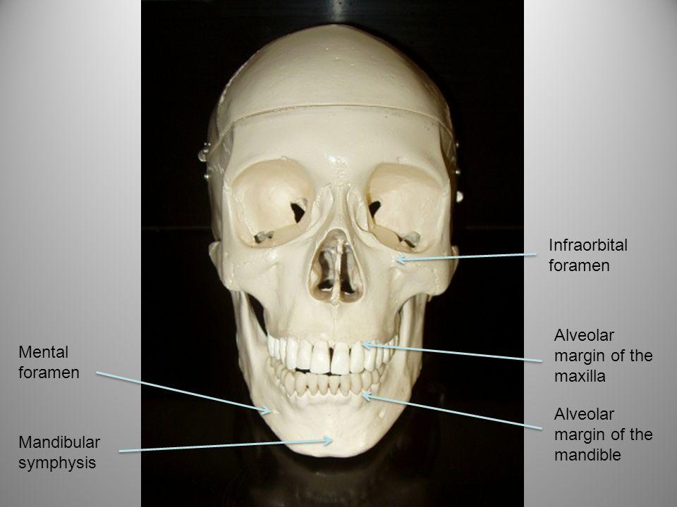 Infraorbital foramen Alveolar margin of the maxilla. Mental foramen. Alveolar margin of the mandible.