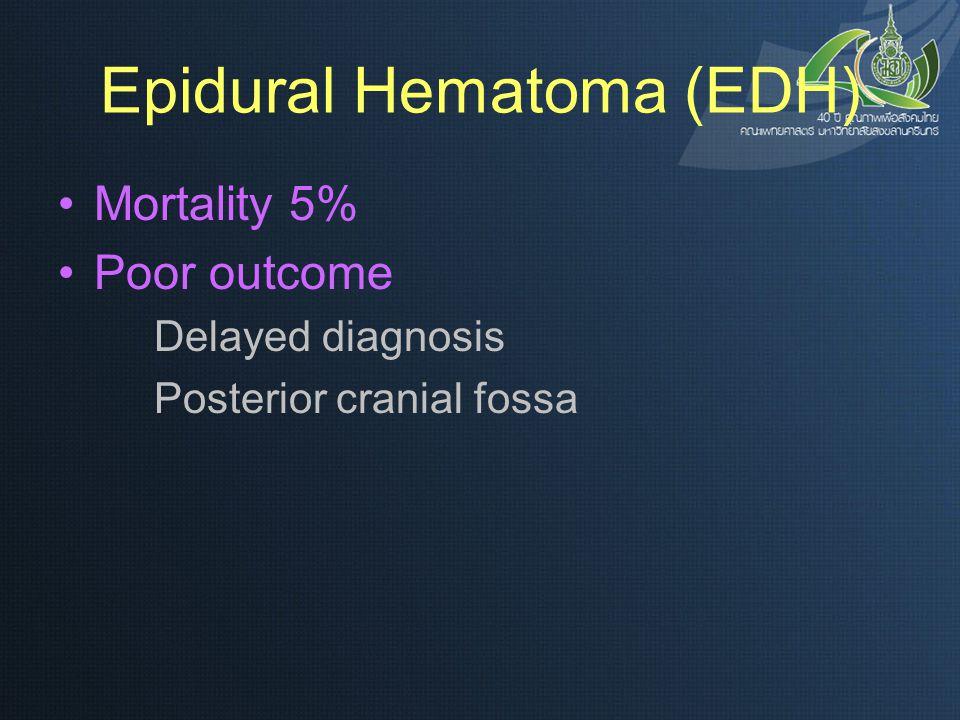 Epidural Hematoma (EDH)