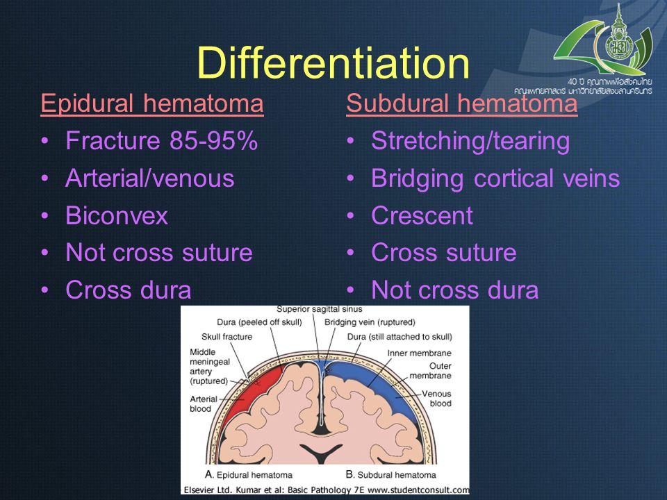 Differentiation Epidural hematoma Fracture 85-95% Arterial/venous