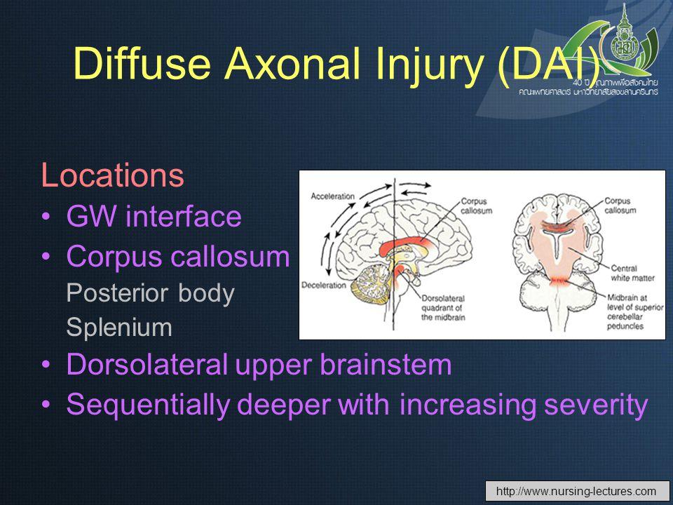 Diffuse Axonal Injury (DAI)
