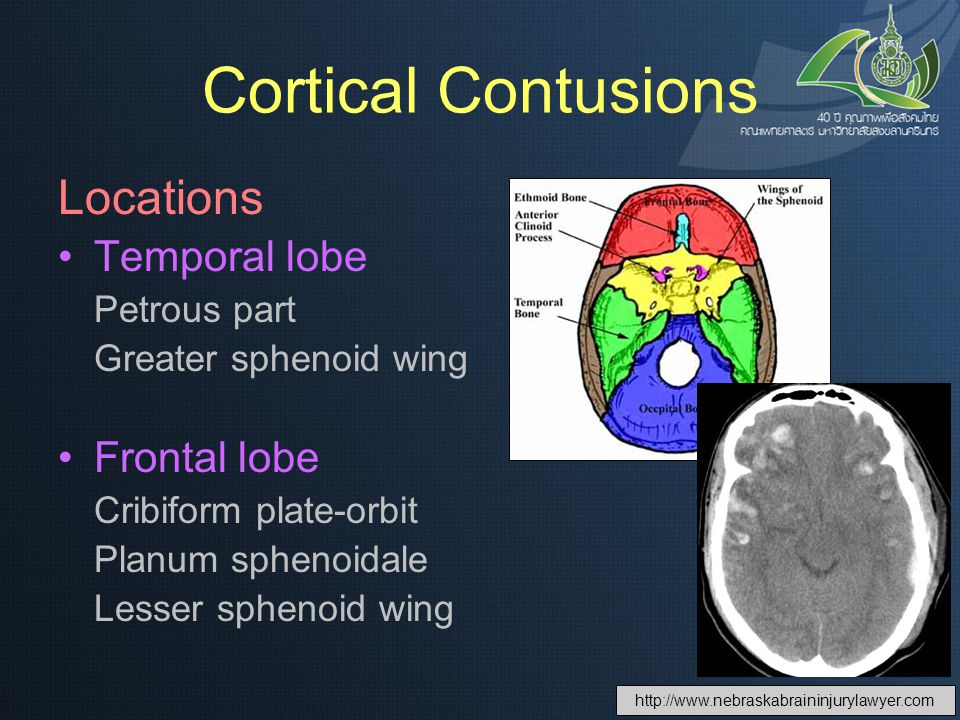 Cortical Contusions Locations Temporal lobe Frontal lobe Petrous part