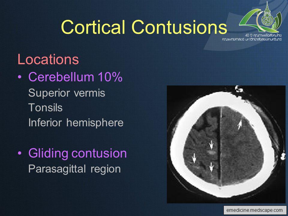 Cortical Contusions Locations Cerebellum 10% Gliding contusion