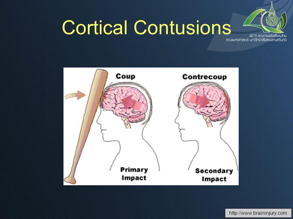 Cortical Contusions http://www.braininjury.com