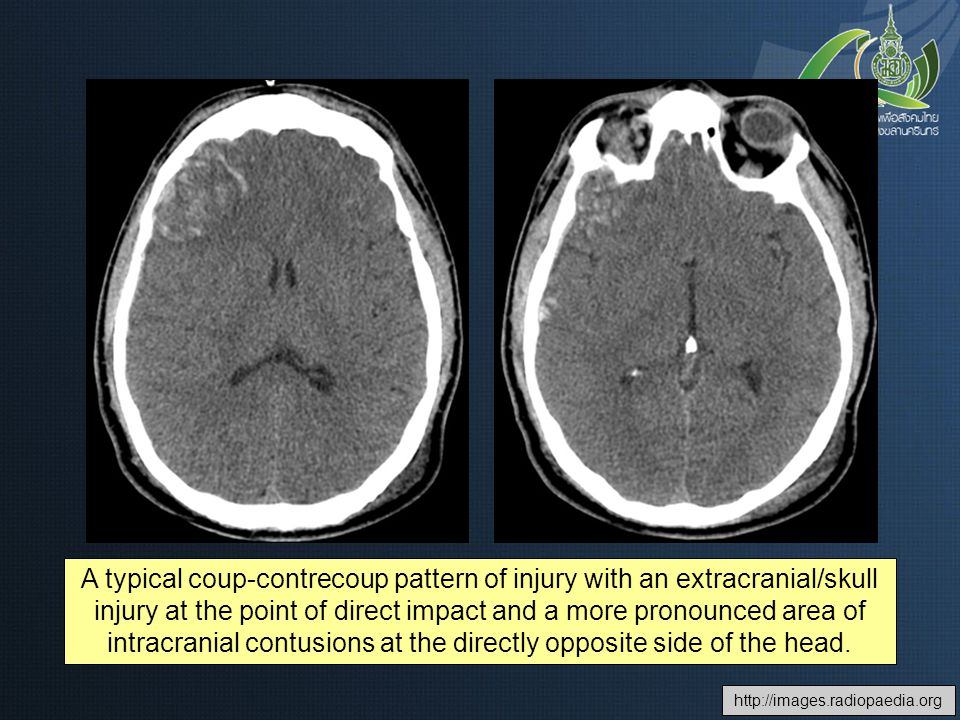 A typical coup-contrecoup pattern of injury with an extracranial/skull injury at the point of direct impact and a more pronounced area of intracranial contusions at the directly opposite side of the head.