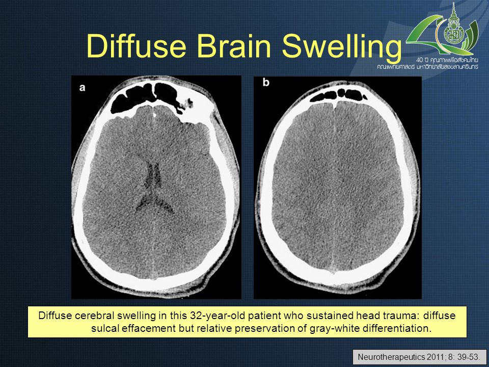 Diffuse Brain Swelling