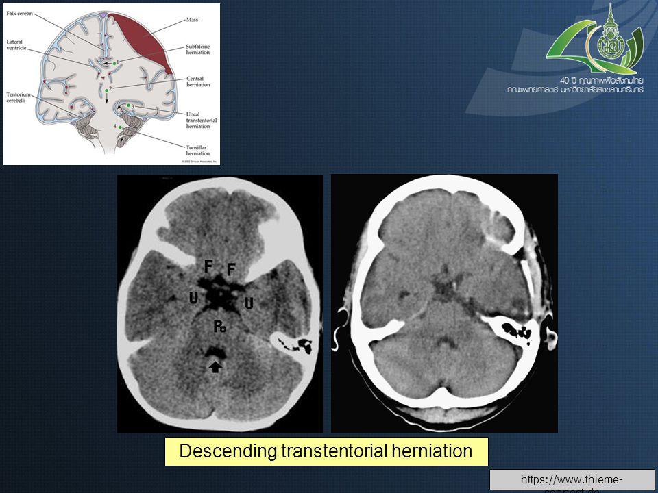 Descending transtentorial herniation