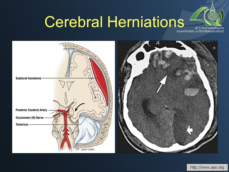 Cerebral Herniations http://www.aao.org
