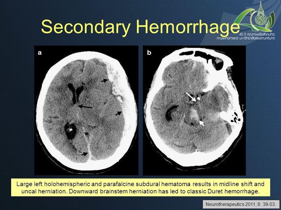 Neurotherapeutics 2011; 8: 39-53.