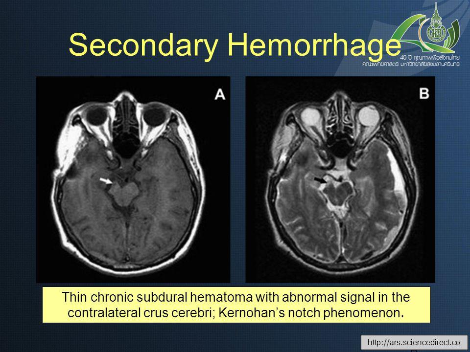 Secondary Hemorrhage Thin chronic subdural hematoma with abnormal signal in the contralateral crus cerebri; Kernohan's notch phenomenon.