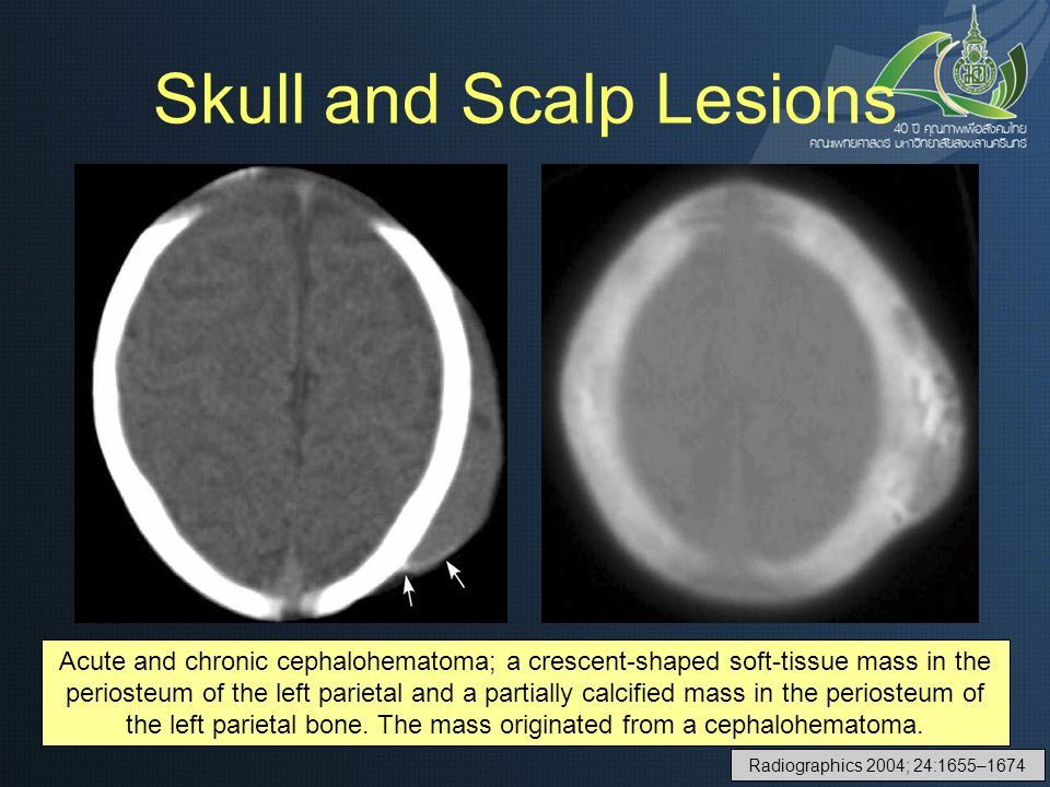 Skull and Scalp Lesions
