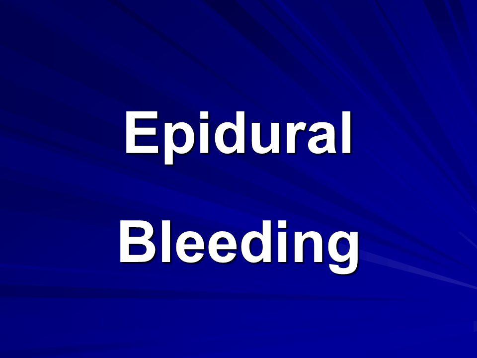 Epidural Bleeding