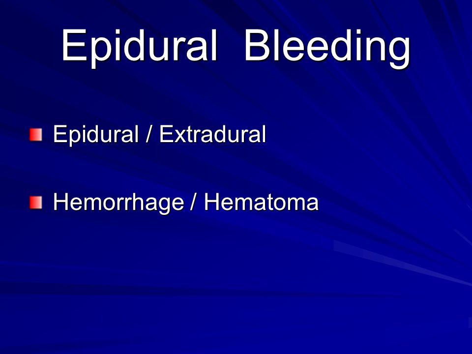 Epidural Bleeding Epidural / Extradural Hemorrhage / Hematoma