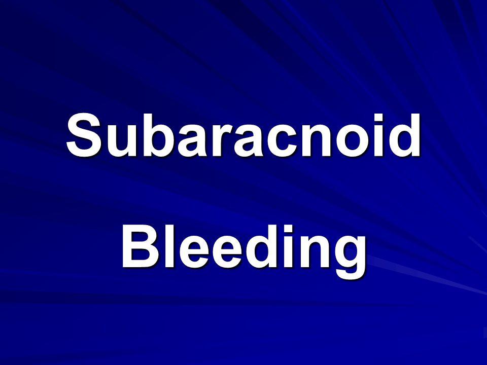 Subaracnoid Bleeding