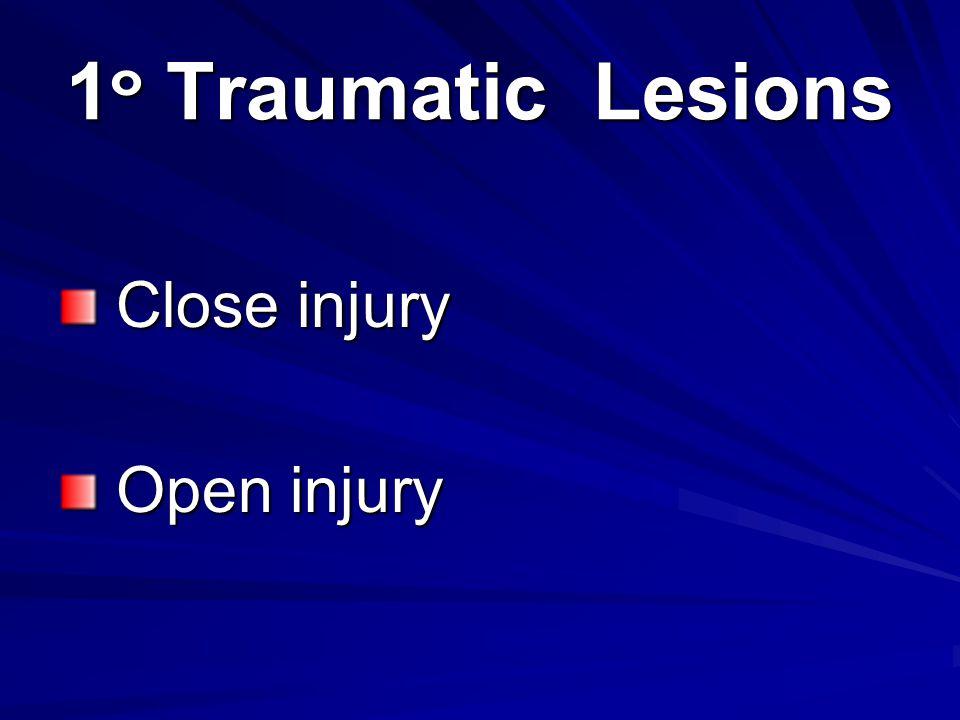 1๐ Traumatic Lesions Close injury Open injury