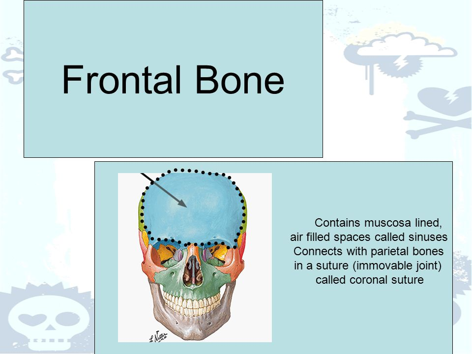 Frontal Bone Contains muscosa lined, air filled spaces called sinuses