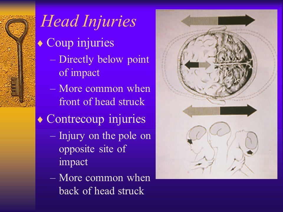 Head Injuries Coup injuries Contrecoup injuries